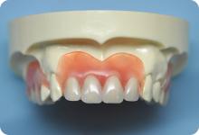 両国スマイル歯科の入れ歯作製