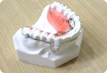 両国スマイル歯科の矯正質問・いつ矯正すればいいの