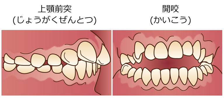 両国スマイル歯科の矯正質問・歯並びを悪くする生活習慣