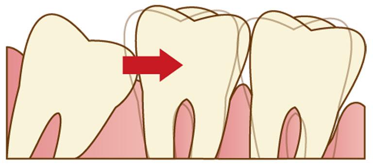 両国スマイル歯科の矯正歯科