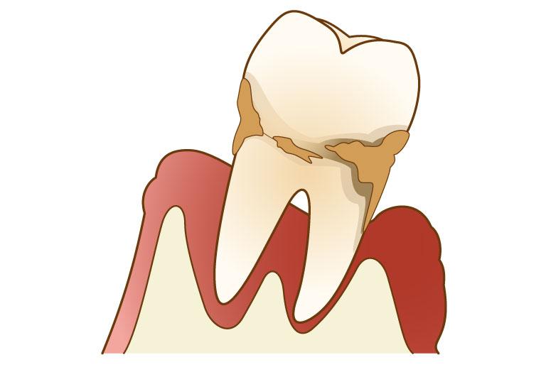 両国スマイル歯科の歯周病治療