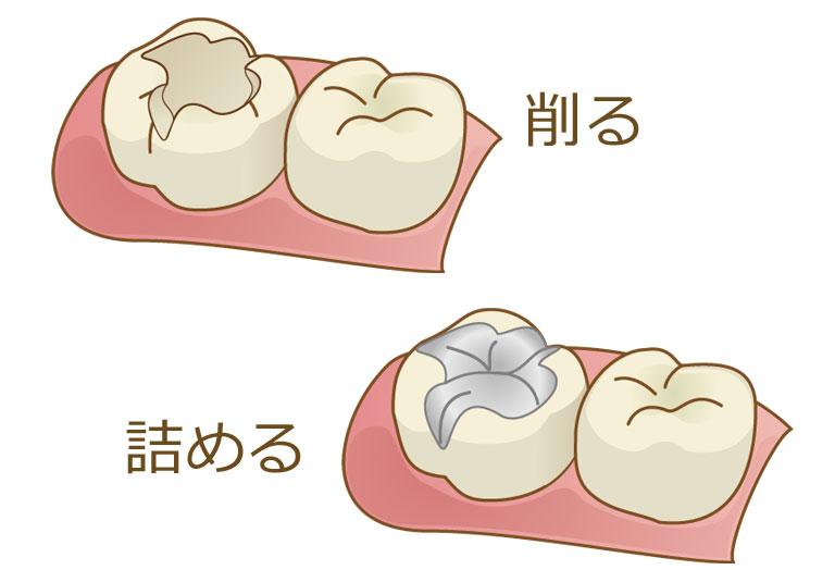 両国スマイル歯科 削って治す治療を行うほど歯は弱くなります