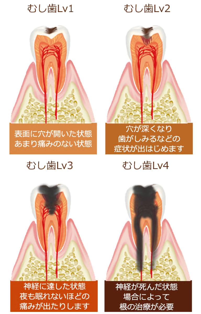 両国スマイル歯科 虫歯になるとこうなります