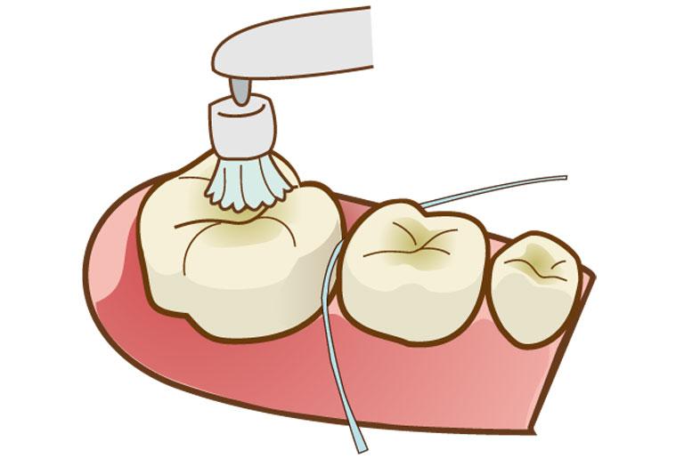 両国スマイル歯科 歯科医師によるクリーニング