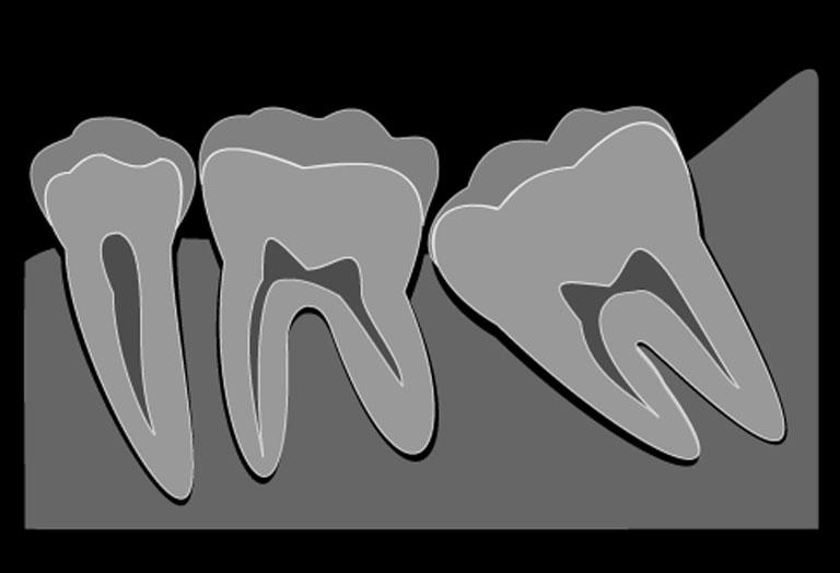 両国スマイル歯科の歯科口腔外科
